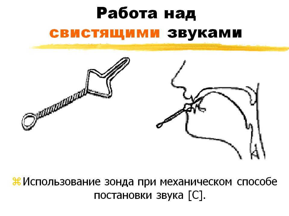 Механический способ постановки С с использованием зонда